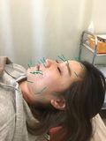 リラックスしながらキレイになれる✨美容鍼の施術の様子